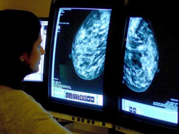 Найден женский дефект, ведущий к развитию рака