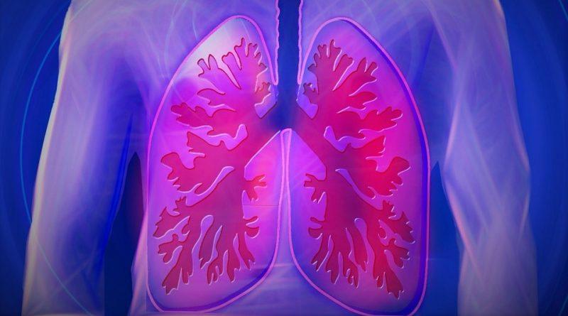 8 самых распространенных симптомов рака легких