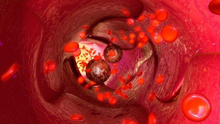 Тройная система проверки находит даже самые неуловимые клетки рака в крови