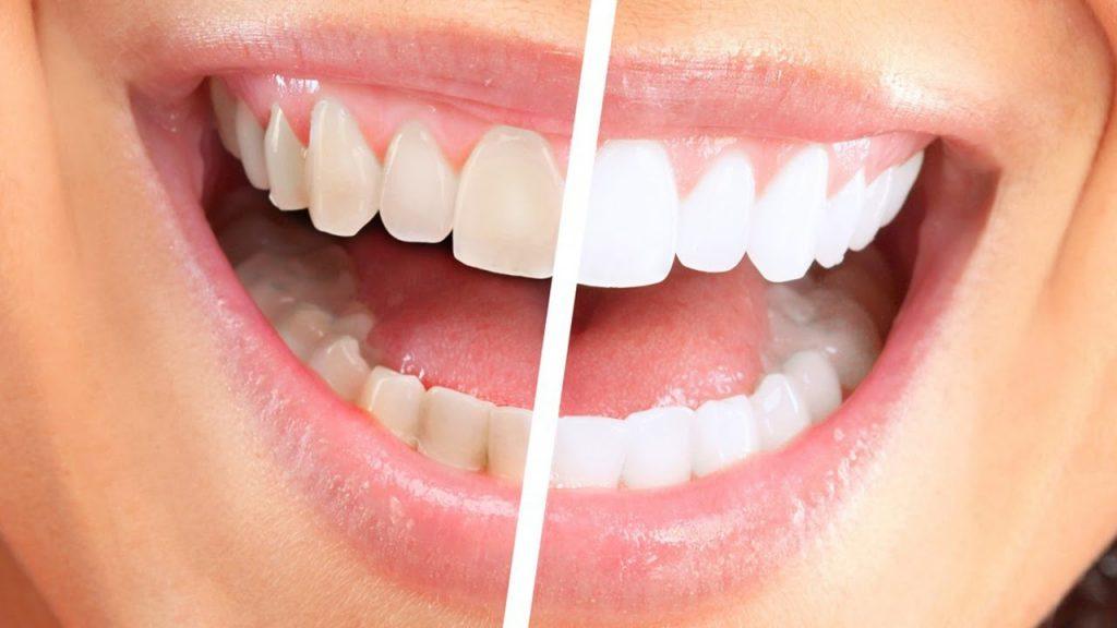 Отбеливание зубов: разновидности, преимущества, недостатки