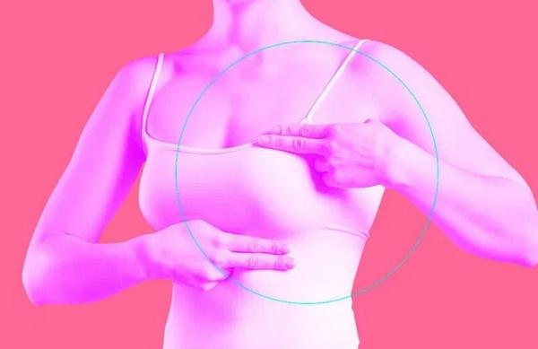 Развенчаны популярные мифы о раке молочной железы