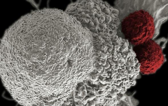 Эксперты объяснили неожиданные последствия противораковой терапии