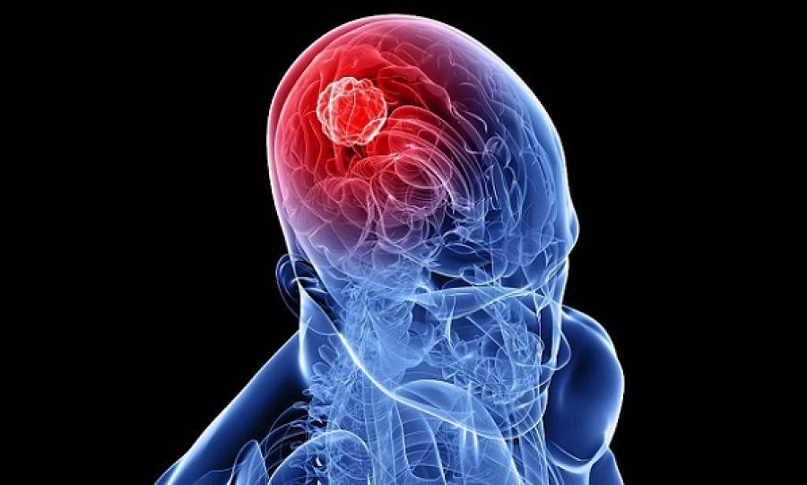 Первые симптомы рака головного мозга