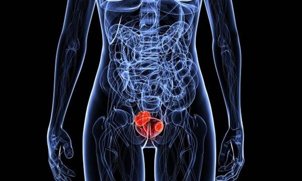 Симптомы и факторы риска рака мочевого пузыря