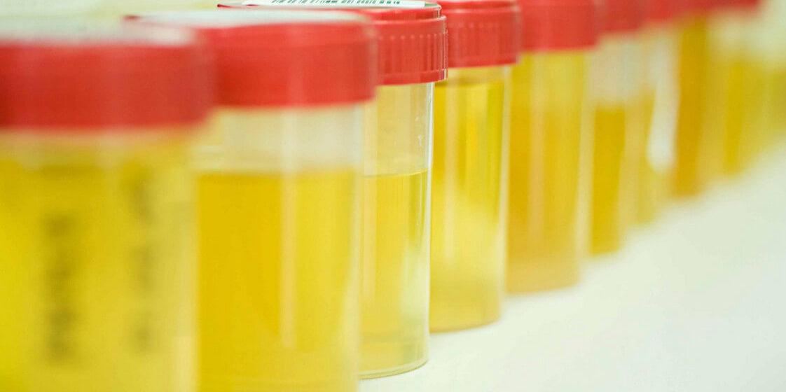 Цвет мочи может оказаться сигналом о развитии рака поджелудочной железы