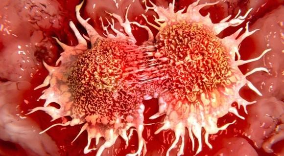 Гипертония повышает риск рака
