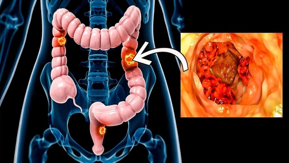 Несколько признаков, сигнализирующих о развитии рака толстой кишки