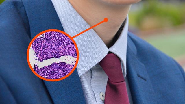 Новаторский тест на ВПЧ помог диагностировать рак горла