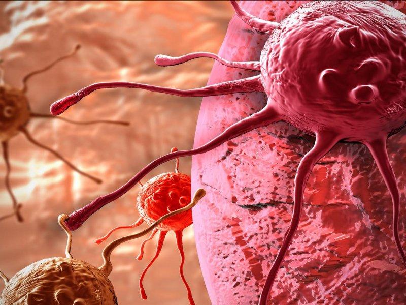 Метастазирование рака начинается намного раньше, чем предполагалось — исследование