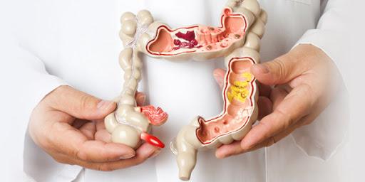 Как правильно подготовиться к осмотру у проктолога: питание, очистка кишечника