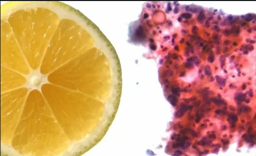 Голодание совместно с витамином C эффективно борется с раком