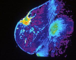 Ученые нашли способ улучшить лечение рака молочной железы