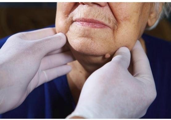 Лимфома, самый тихий вид рака: как распознать болезнь