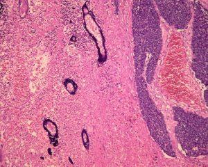 Трансплантация стволовых клеток из пуповинной крови может быть эффективнее при лечении рака