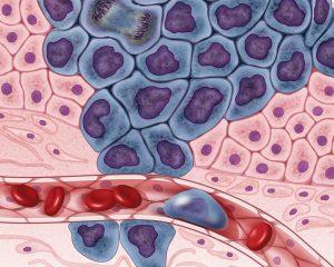 Ученые нашли очередную уязвимость рака