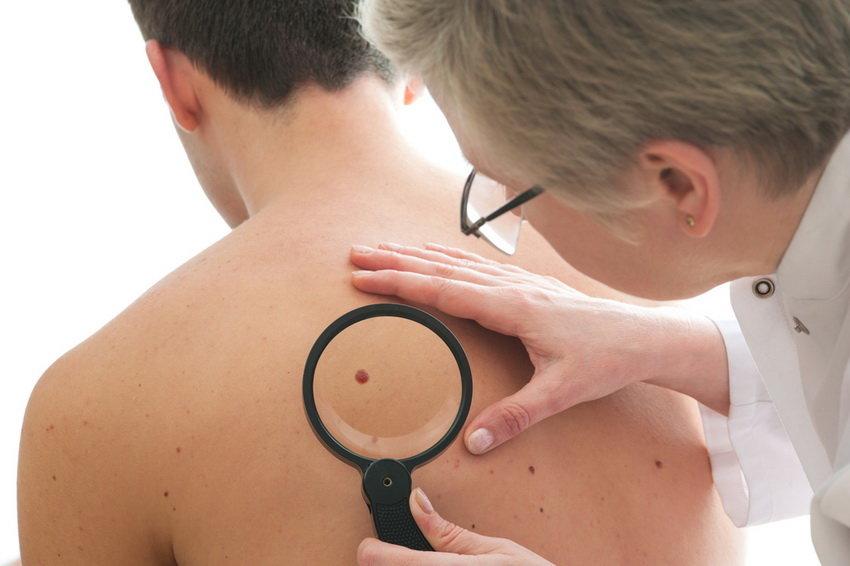 Мужчины оказались склонны к раку кожи — исследование