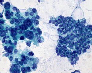 Японские ученые предложили новую стратегию лечения рака поджелудочной железы