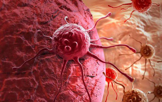 Ученые нашли новый противораковый агент среди жирных кислот