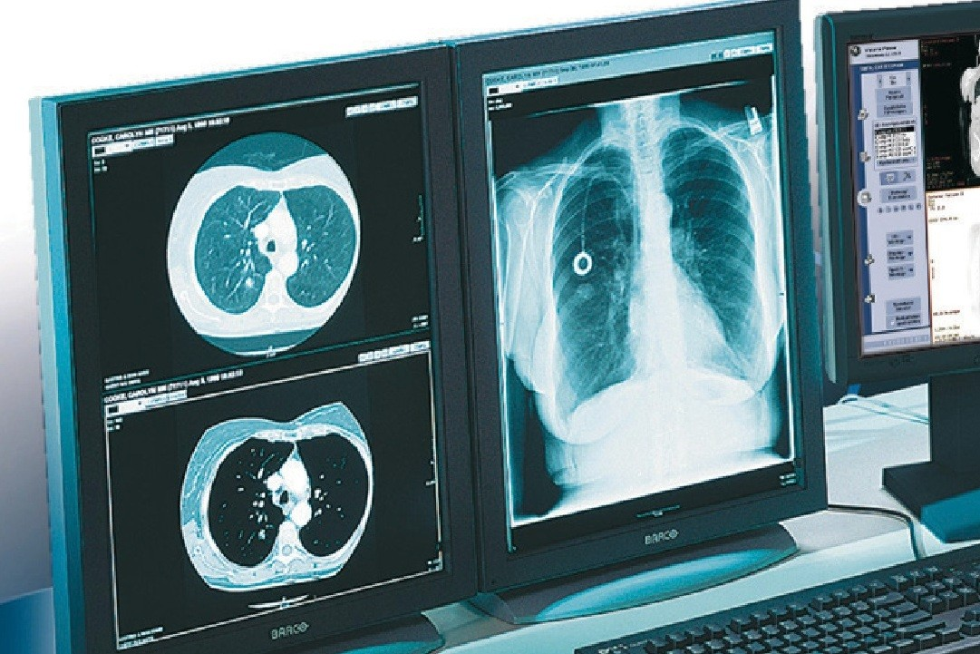 Новая методика улучшает диагностику и лечение рака легких