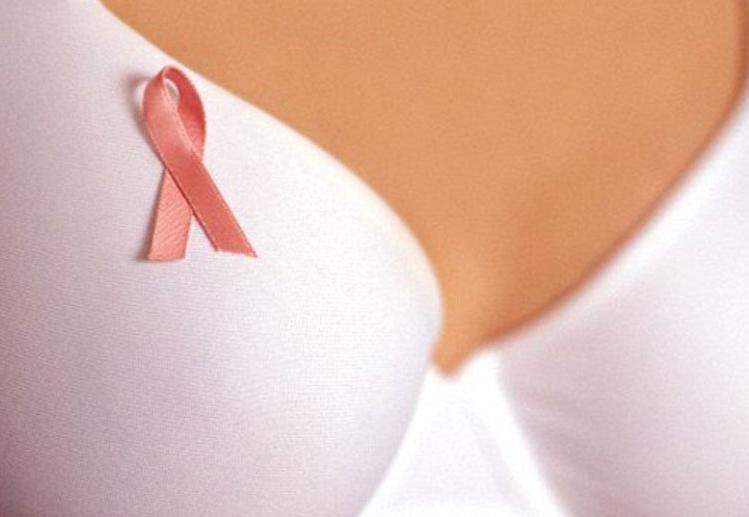 В США создали препарат, убивающий клетки рака молочной железы