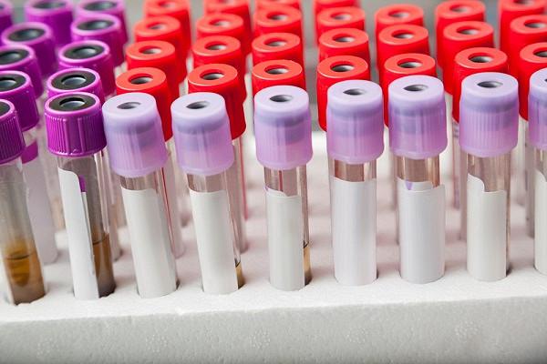 Россиянам назвали возраст для сдачи анализов на рак