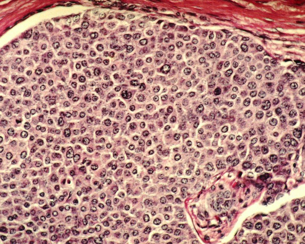 Рак и его лечение могут ускорить процесс старения у молодежи