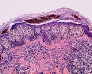Флуоресцентные молекулы в моче могут помочь в отслеживании рака
