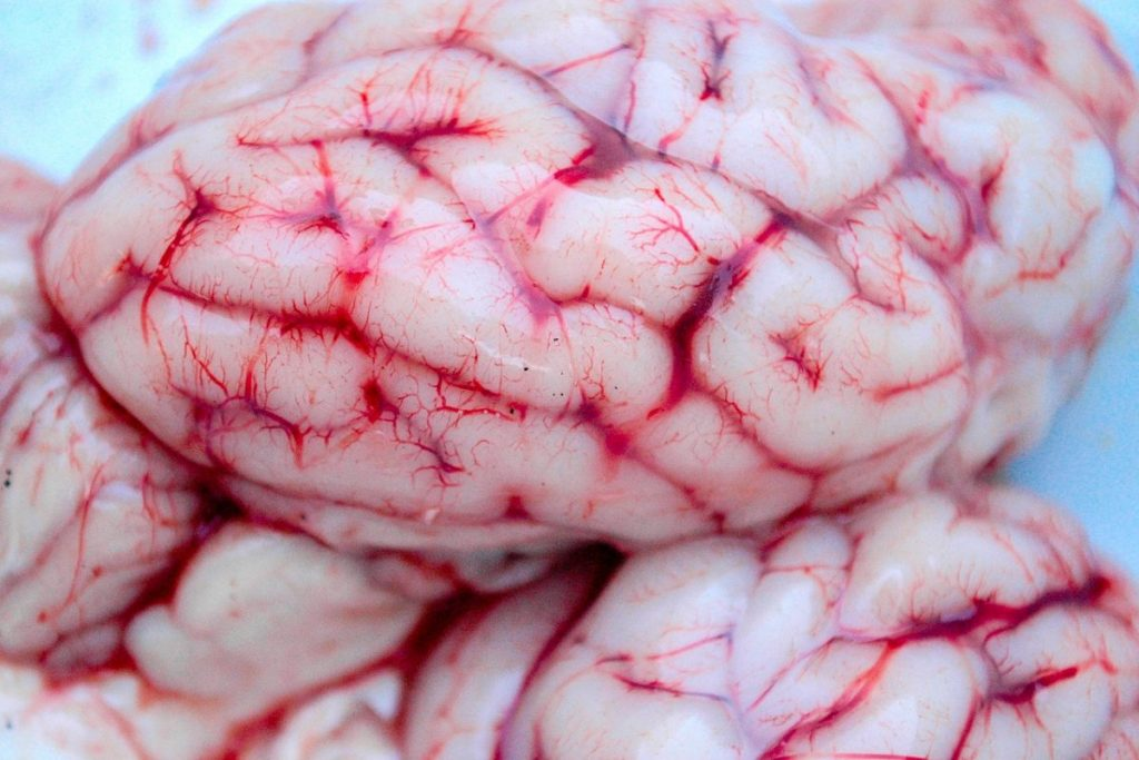 Учёные: коронавирус приводит к опухоли мозга