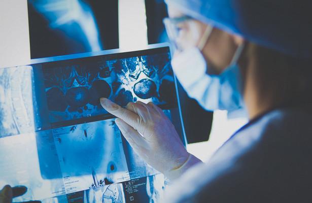 Эксперт рассказал, какие органы больше всего подвержены раковым опухолям