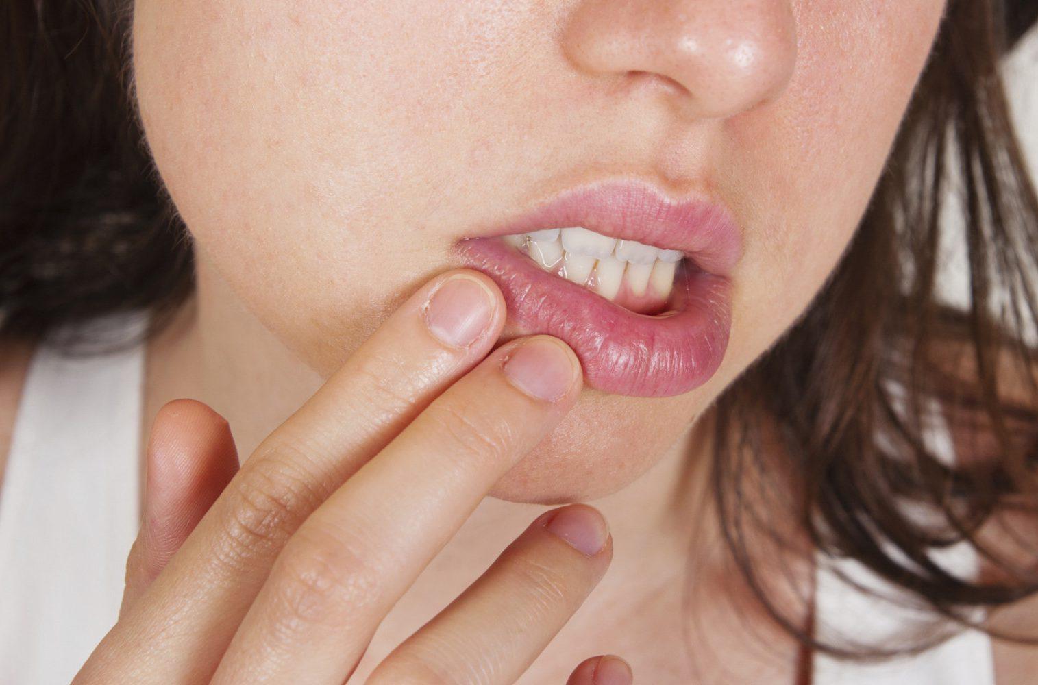Лечение рака губы народными средствами