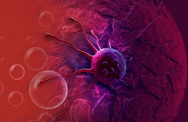 Врач рассказал, кто подвержен более быстрому развитию рака