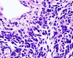Селперкатиниб показал эффективность против немелкоклеточного рака легкого