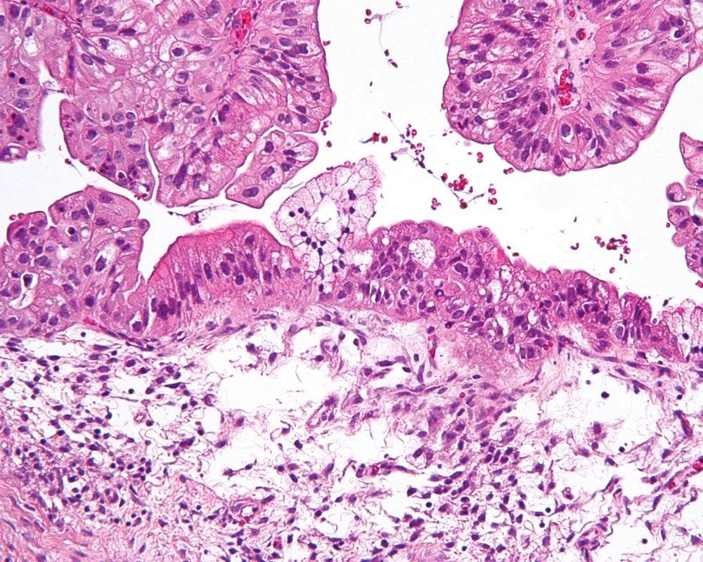 Тестирование опухоли может дать прогноз при раке яичников