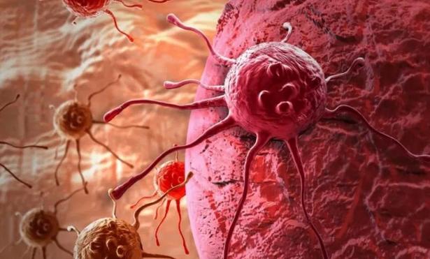 Названы скрытые признаки онкологических заболеваний