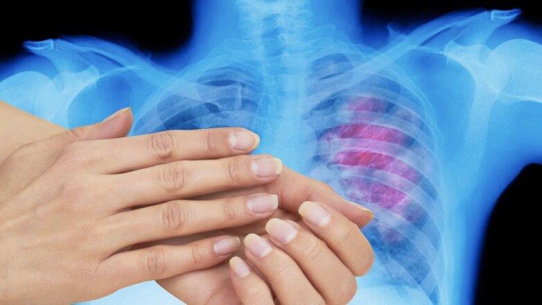Ученые объяснили, как выявить рак легких по пальцам