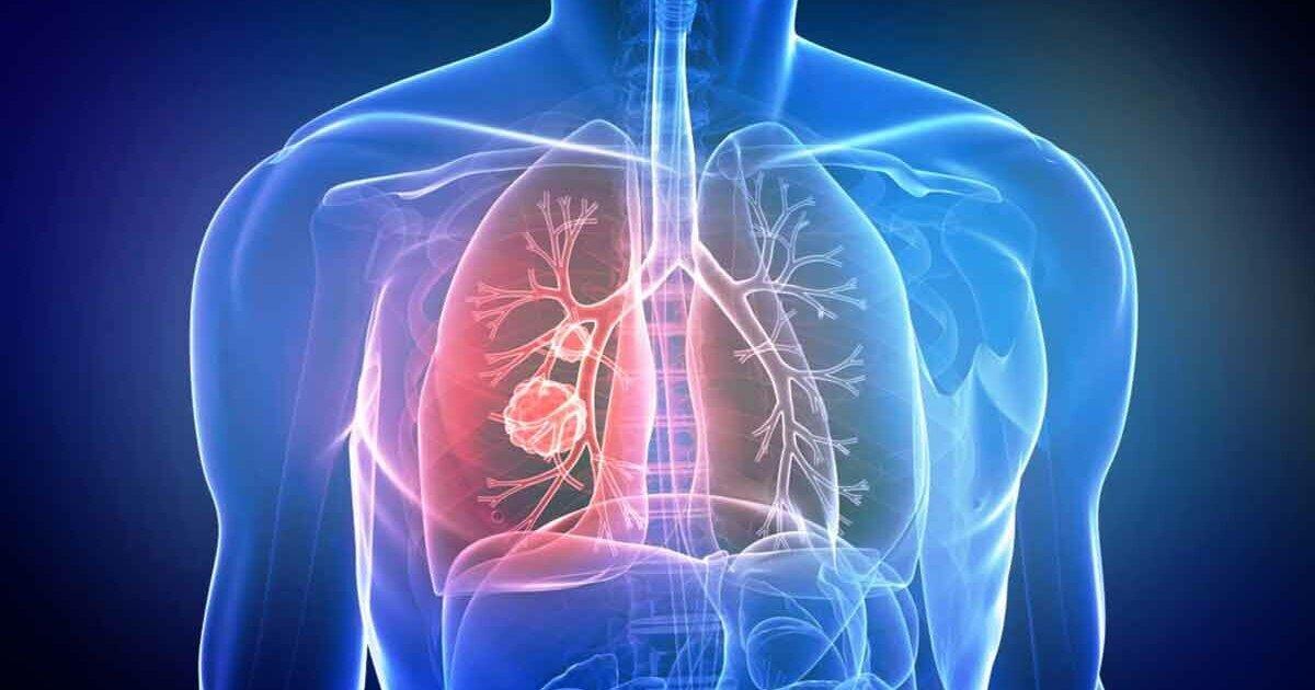 Врачи обнаружили нехарактерные признаки рака легких