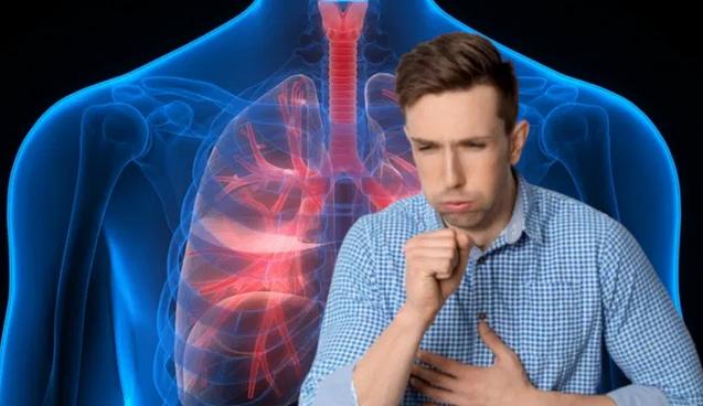 Названы симптомы рака легких, которые легко пропустить