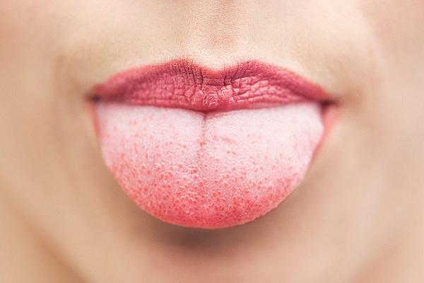 Онколог рассказал о причинах появления рака языка