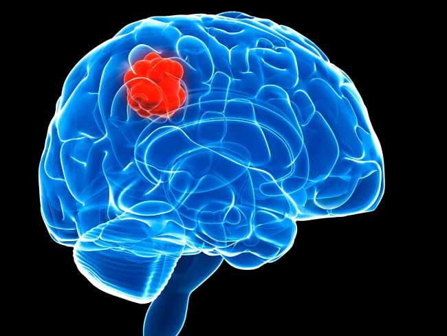 Симптомы рака мозга: нарушение зрения и другие сигналы опухоли