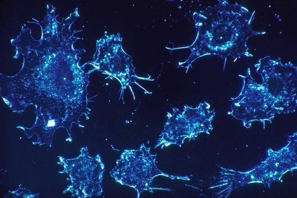 Онкоиммунолог рассказал о связи между ожирением и раком простаты
