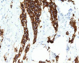 Для рака груди может появиться новое эффективное лечение