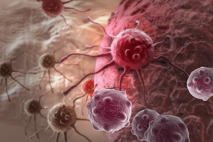Ученые обнаружили новый способ победить рак