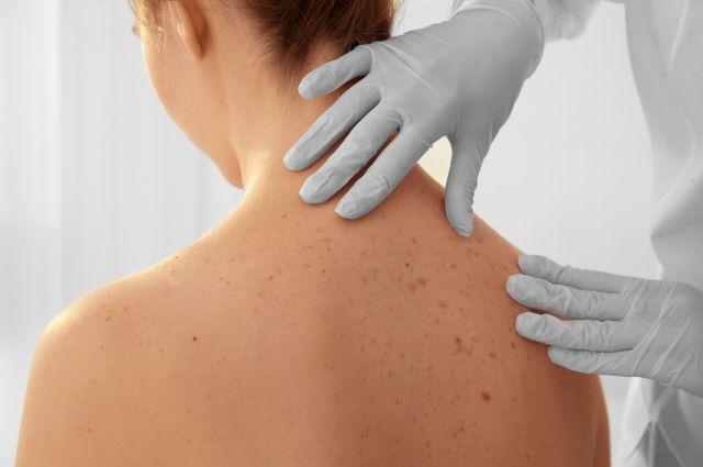 Правда и мифы о раке кожи