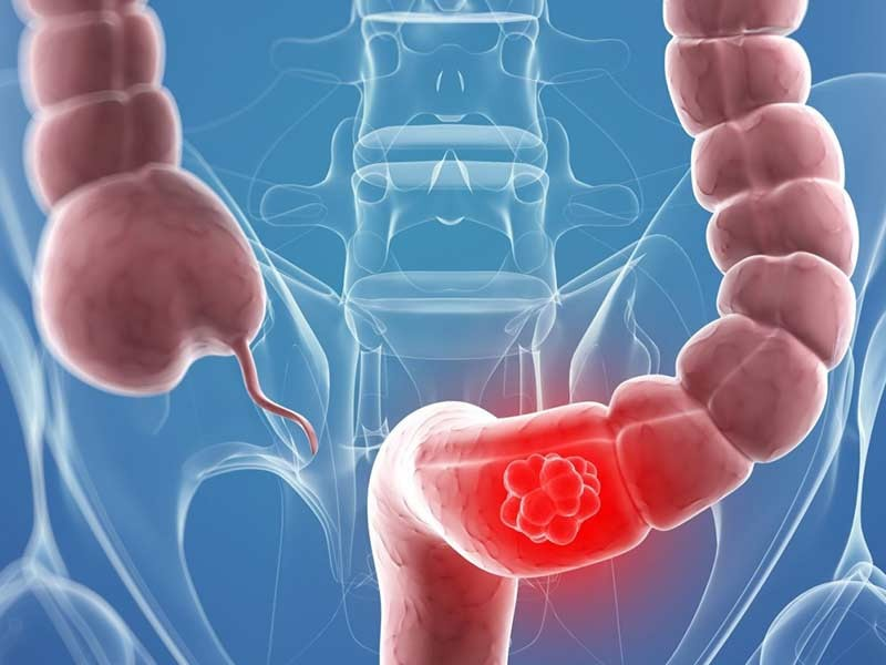 Врачи назвали 6 факторов риска рака толстой кишки, о которых нужно знать всем
