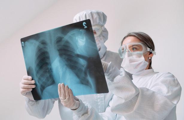 Назван способ отличить коронавирус от рака легких