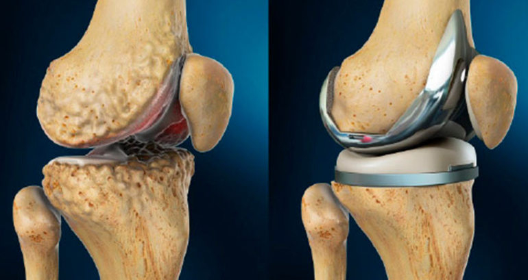 Эндопротезирование коленного сустава: суть операции и восстановление
