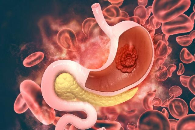Что провоцирует рак желудка, его виды и лечение
