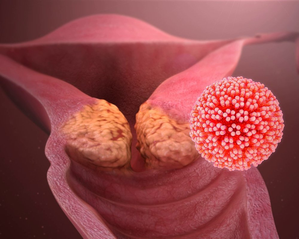 Старение клеток может влиять на лечение рака шейки матки