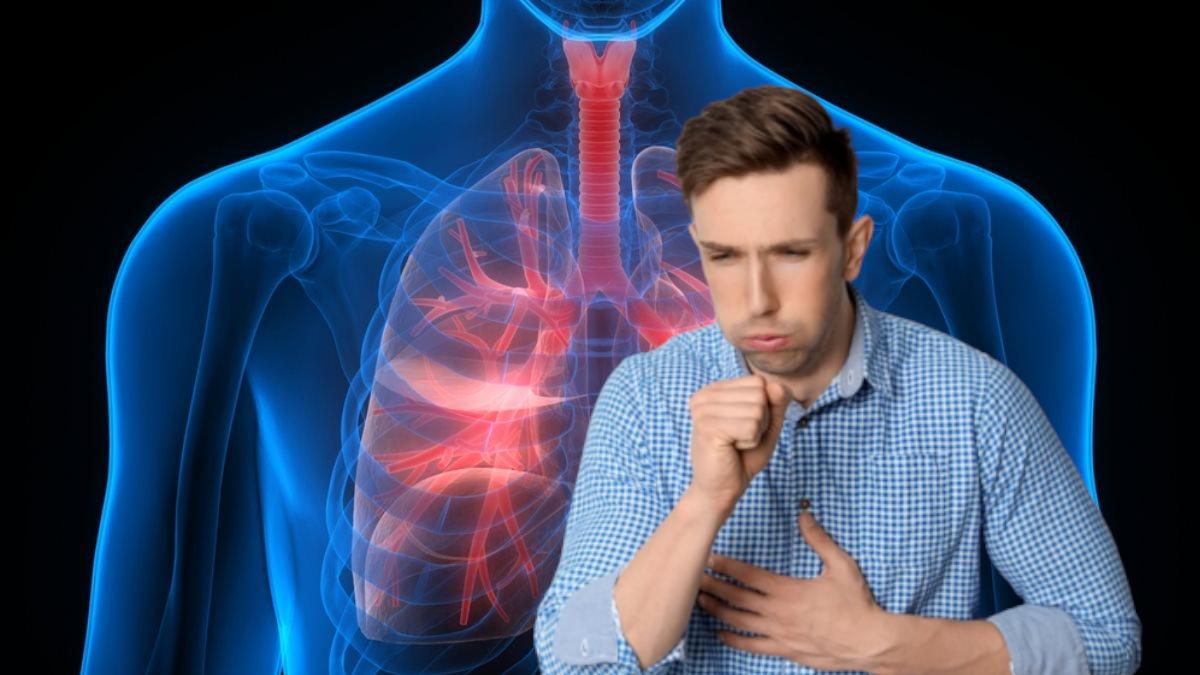 Рак легких: пять неожиданных признаков опасного заболевания