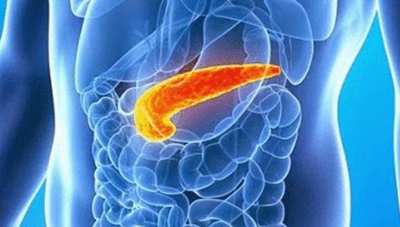 Названы факторы, вызывающие рак поджелудочной железы